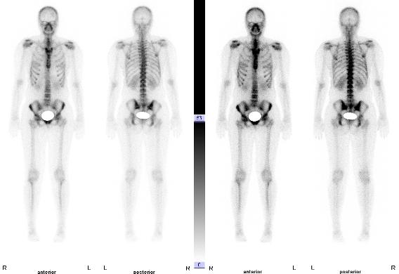 Skelettszintigraphie